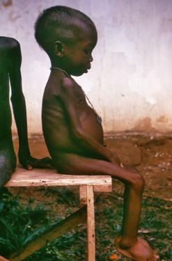 Warum verhungert Afrika?